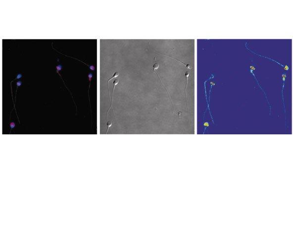 El Instituto Bernabeu y la Cátedra de Medicina Reproductiva de la UA presentan un estudio sobre la afección de la nicotina en los espermatozoides en el Congreso de Histología