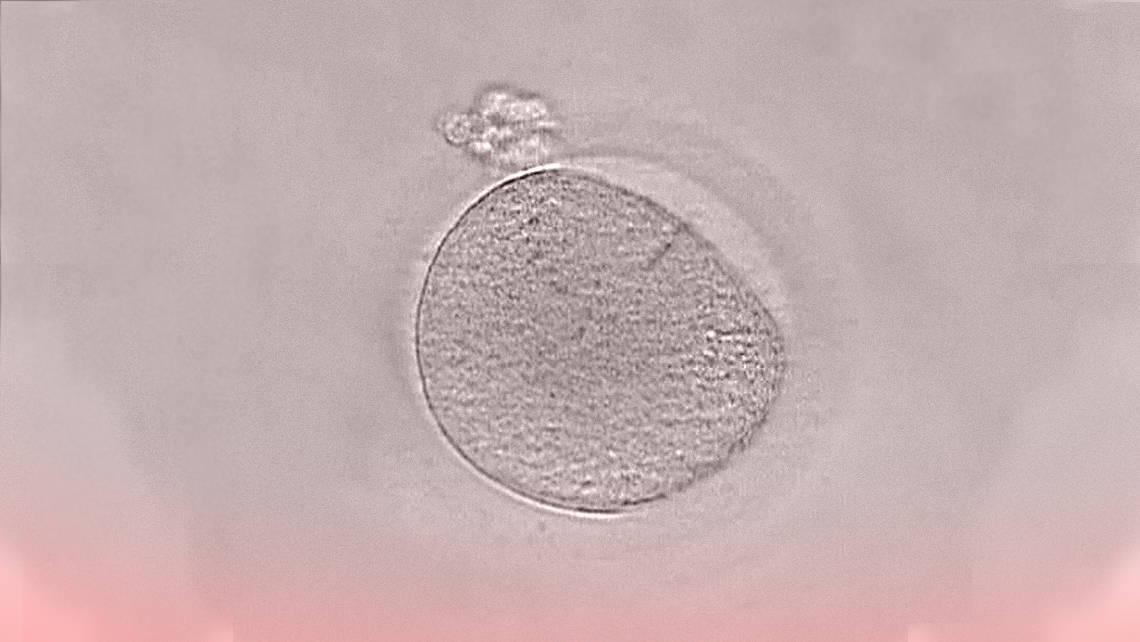 Vitrifizierung von Eizellen. Die Erhaltung der Fruchtbarkeit.
