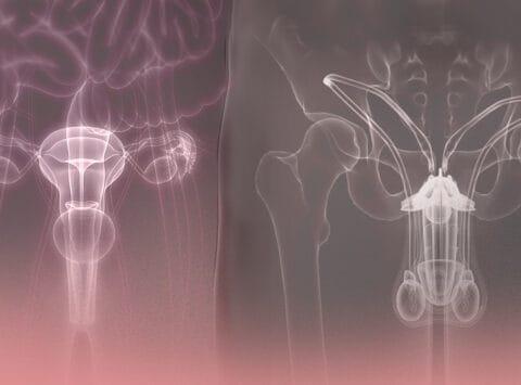 Sterility and Infertility