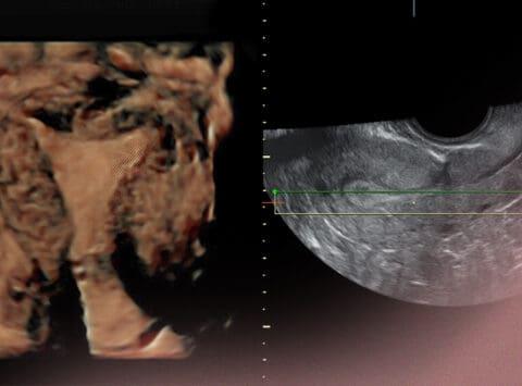 Die Bedeutung der Dicke der Gebärmutterschleimhaut bei Behandlungen der assistierten Reproduktion