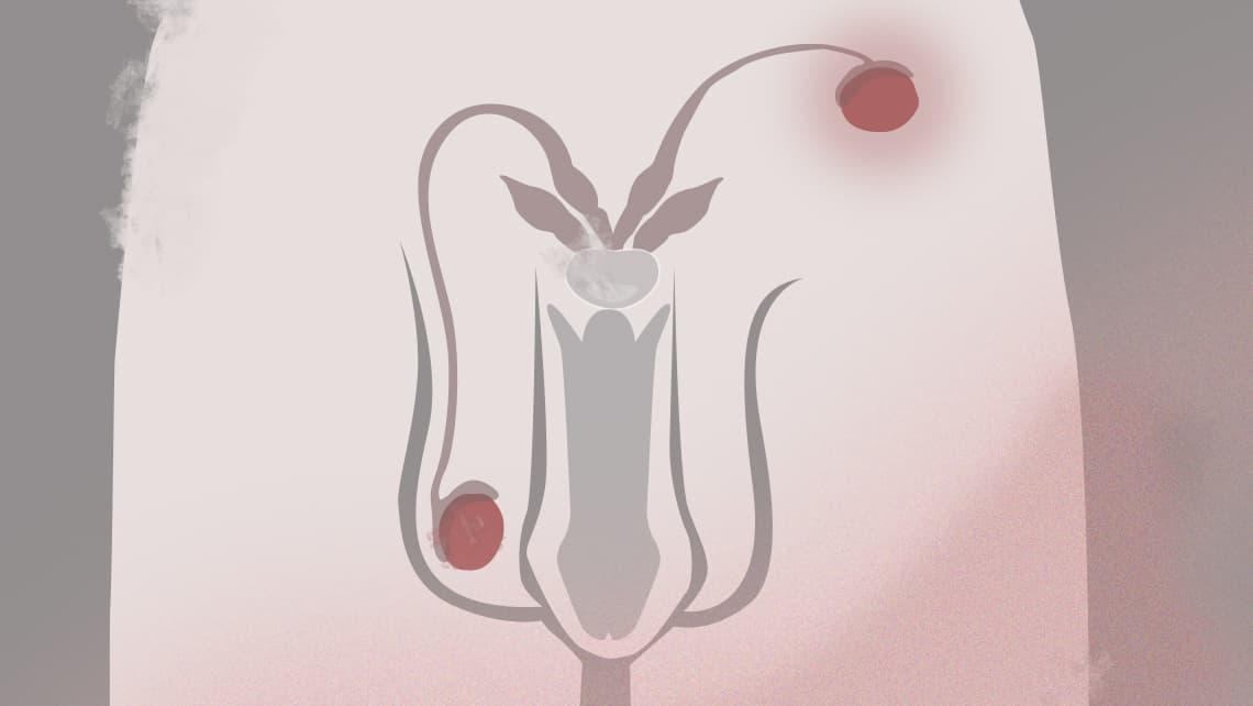 Unfruchtbarkeit beim Mann und Hodendystopie