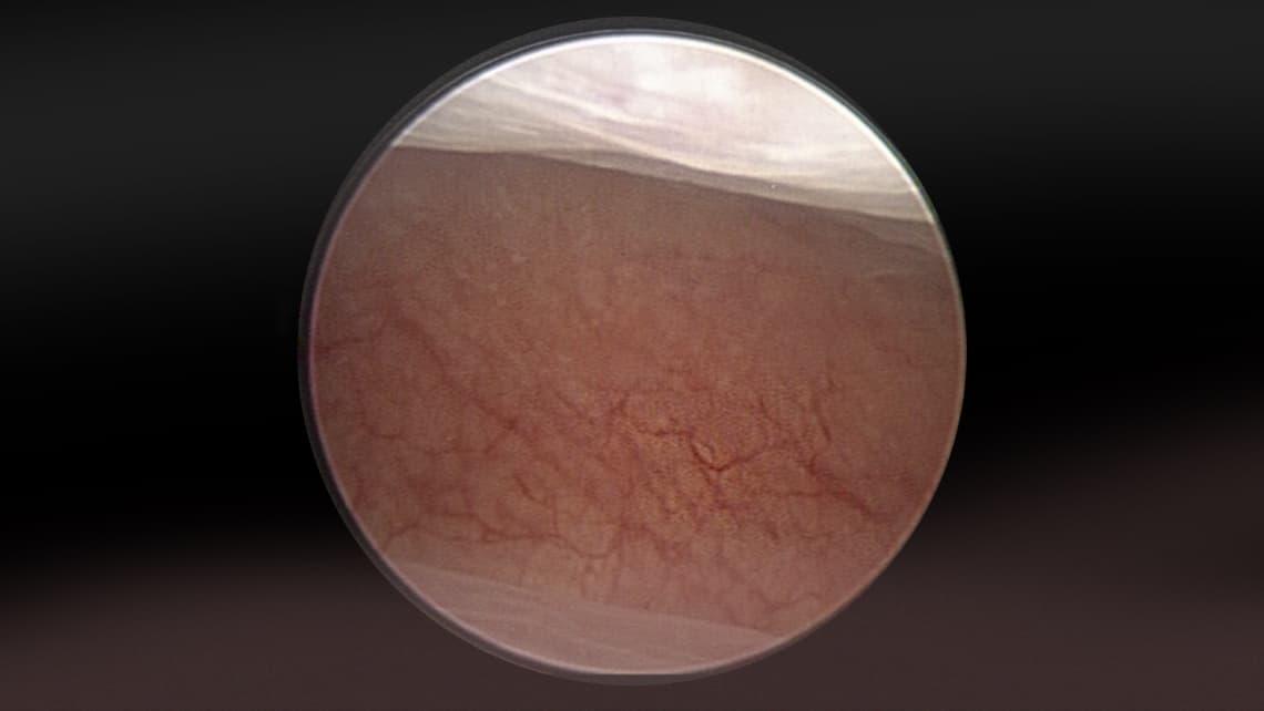 Histeroscopia diagnóstica, biopsia endometrial y scratching