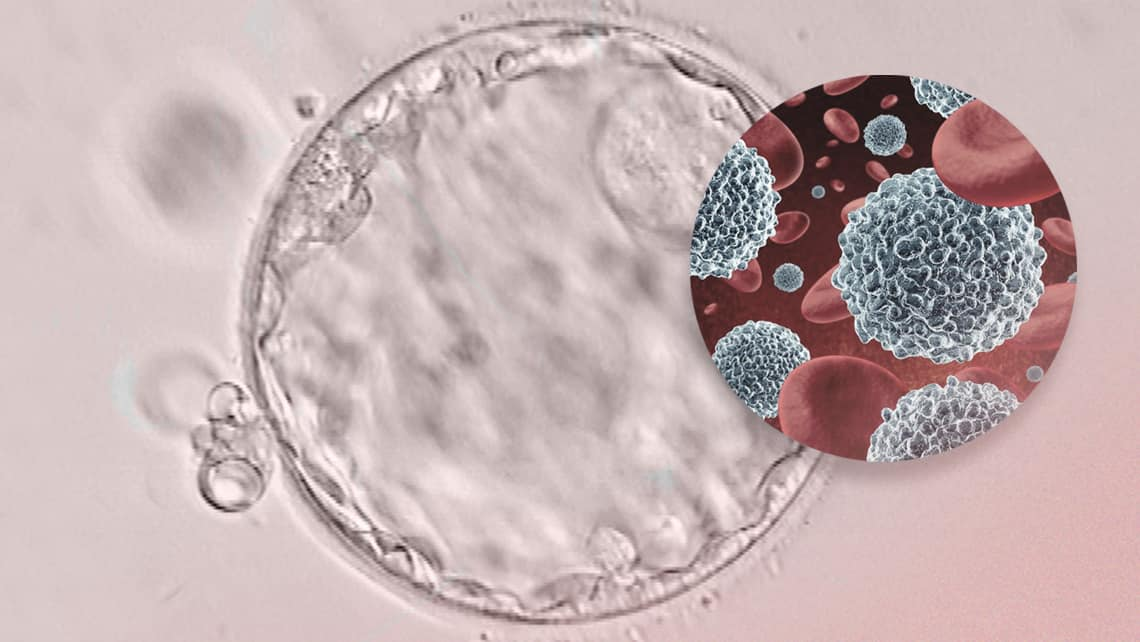 Can the immune system have an impact on implantation failure and recurrent pregnancy loss?