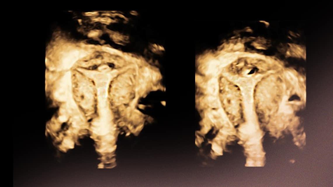 Histerosalpingografía VS histerosonografía