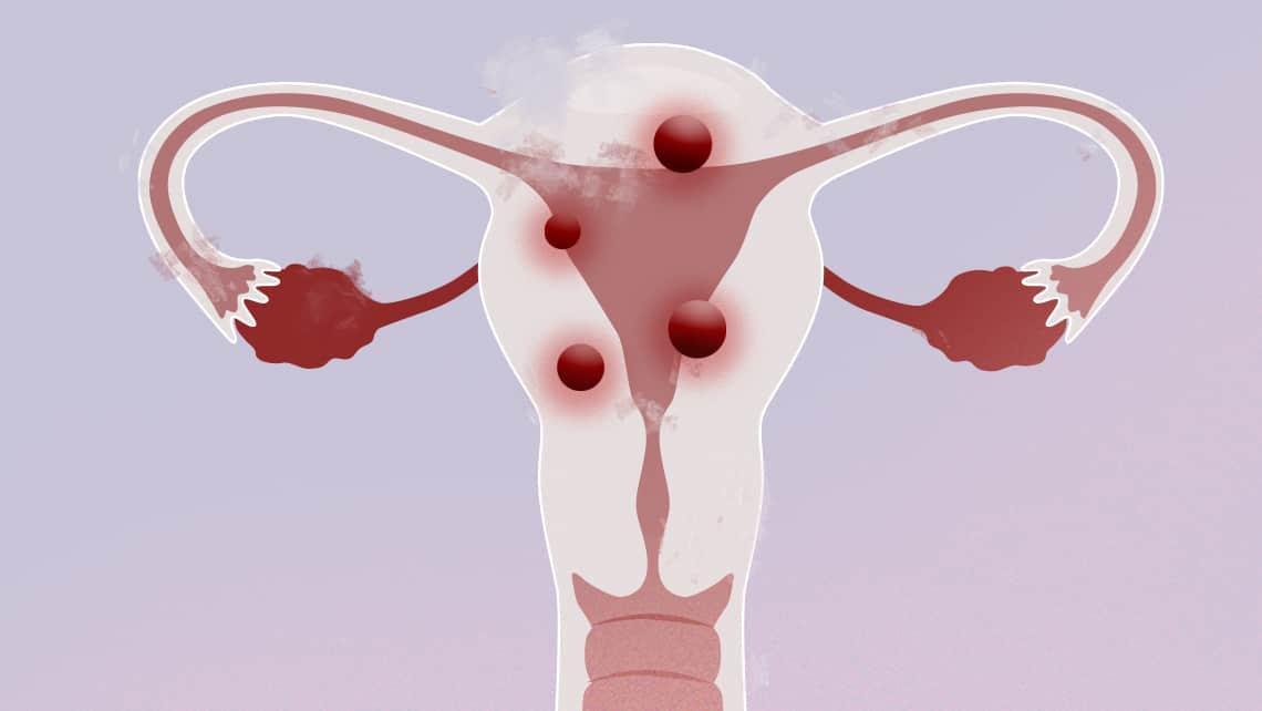Diagnóstico y tratamiento de los miomas uterinos