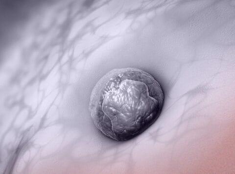 Blutung durch Embryonenimplantation