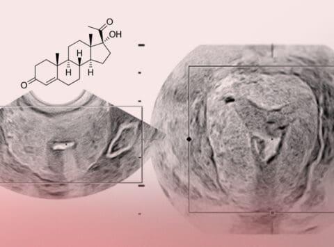 Il progesterone e il ruolo che svolge nella riproduzione