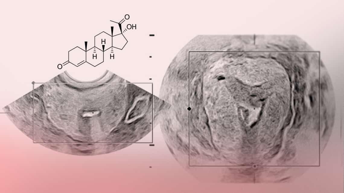 La progesterona y su papel en la reproducción