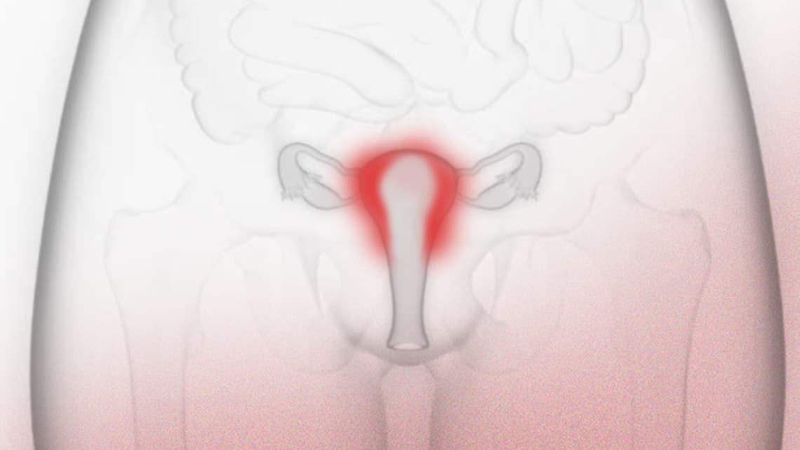 Was ist chronische Endometritis und wie wirkt sie sich auf die Fruchtbarkeit aus?