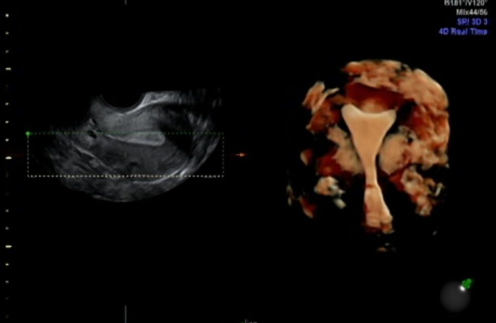 Instituto Bernabeu study relates progesterone to uterine contractility and its effect on patients with embryo implantation failure