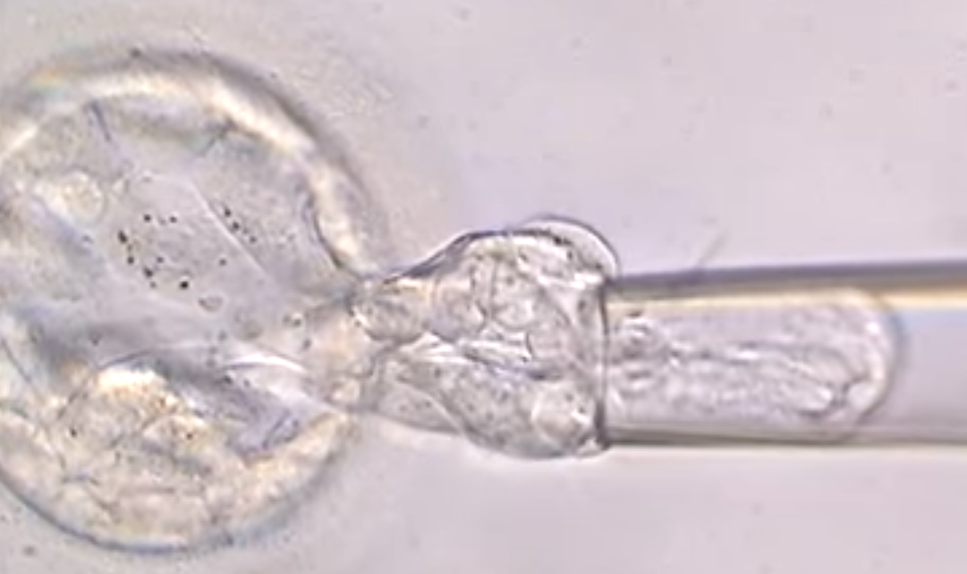 Instituto Bernabeu carries out research to determine if the number of twin pregnancies increases following embryo biopsy