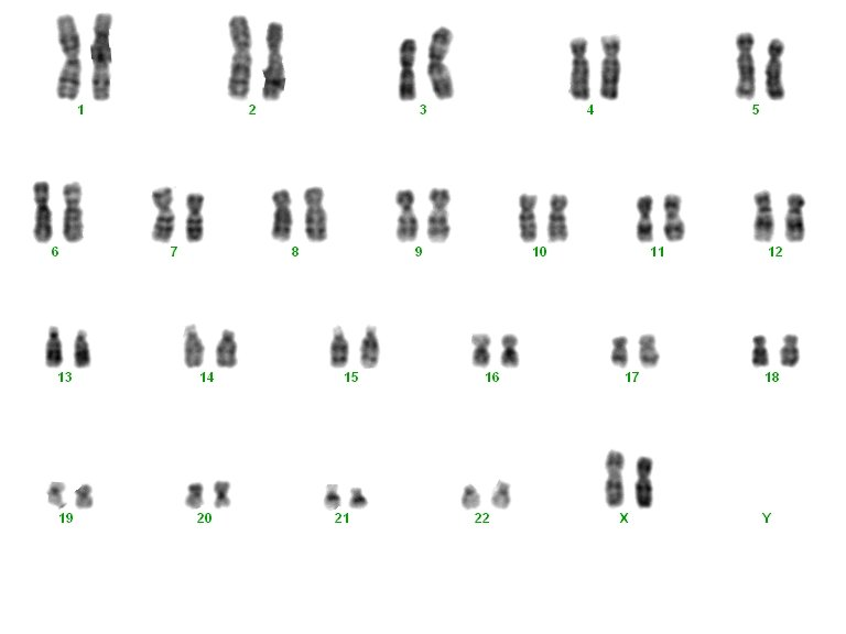 Clinical study on the risks of chromosomally abnormal embryos in very young mothers