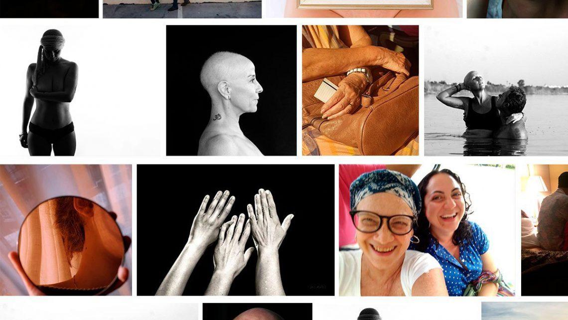 Finalistas del 2º concurso de fotografía por el cáncer ginecológico de la Fundación Rafael Bernabeu