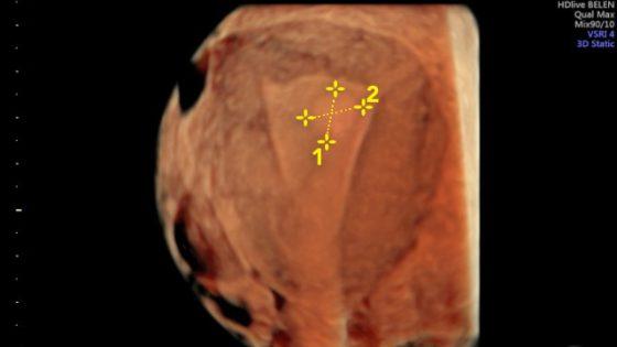 Endometriale Polypen; was ist das, wie entstehen sie, Symptome und Behandlungen