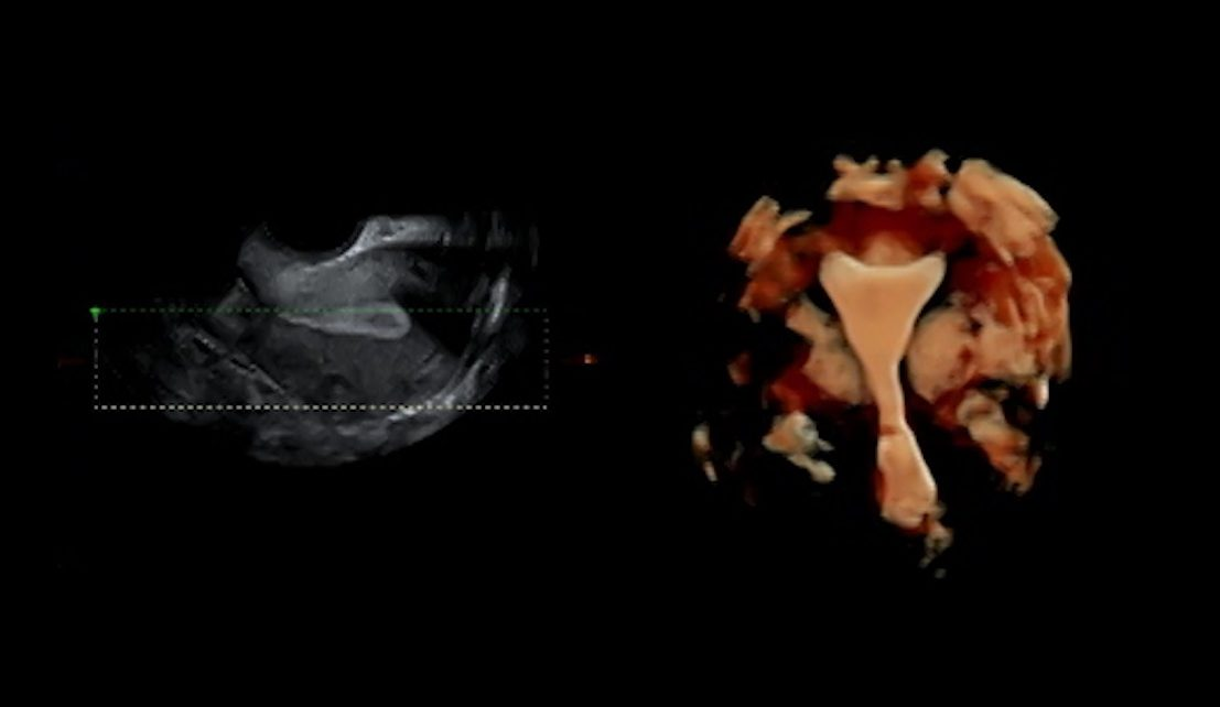 Uterine contractions: a challenge for embryo implantation