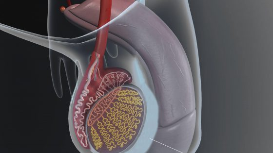 What is a hydrocele? Symptoms and treatment
