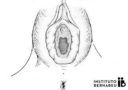 Hipertrofia genital: Cirugía de labios vaginales