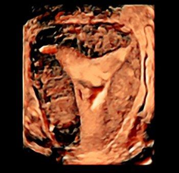 Endometriosi, perché il nostro sistema immunitario lo permette?