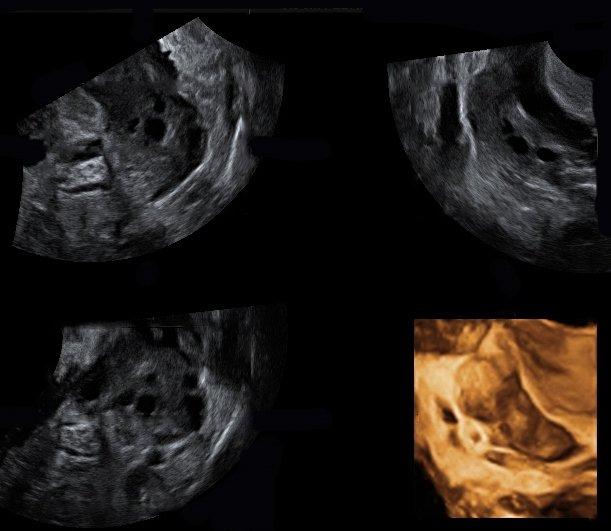 Rischio di gravidanza ectopica dopo una fecondazione in vitro (FIV)