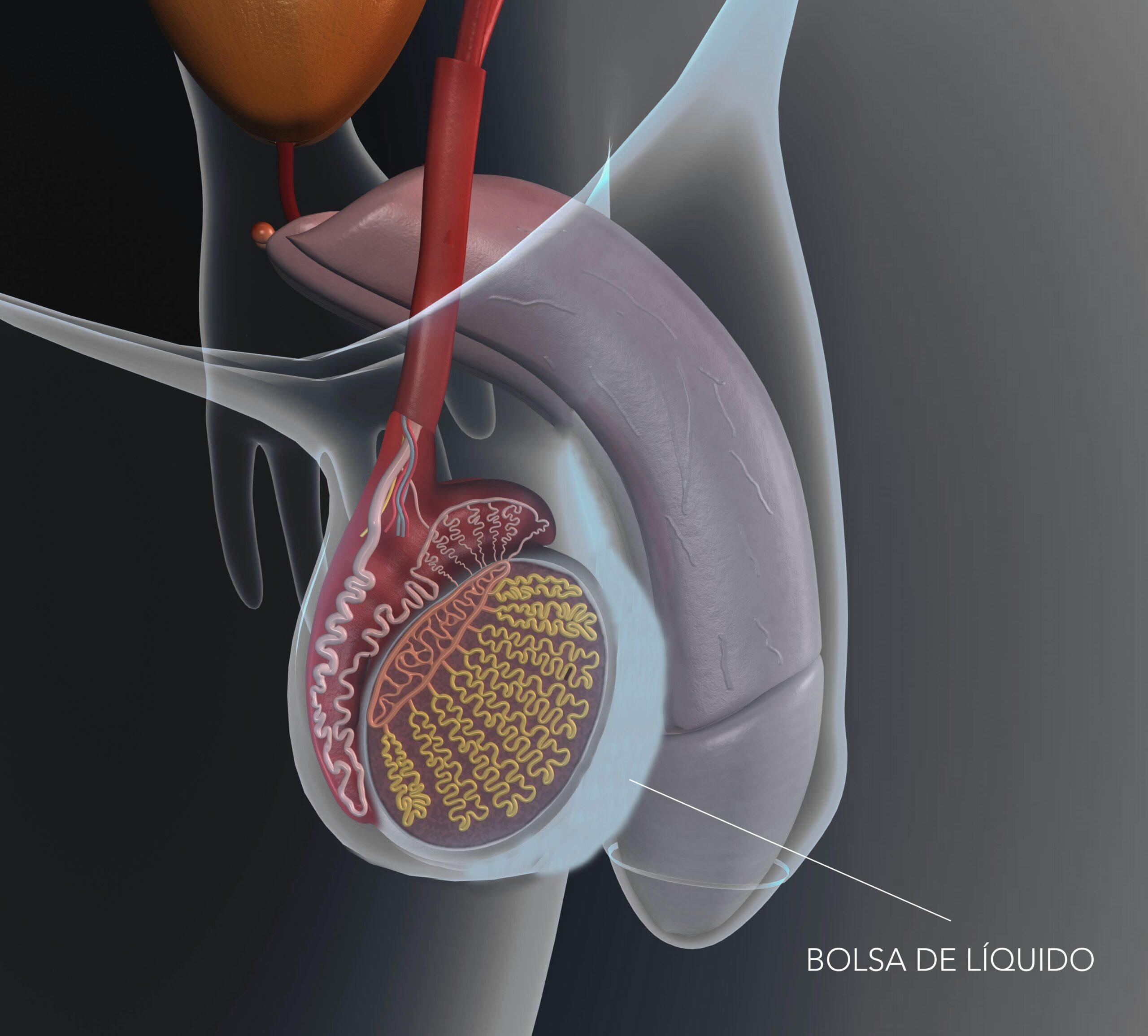 Cos'è l'idrocele? Sintomi e trattamento - Instituto Bernabeu
