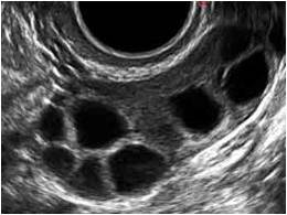 Accumulation of oocytes in patients with a low response - Instituto Bernabeu