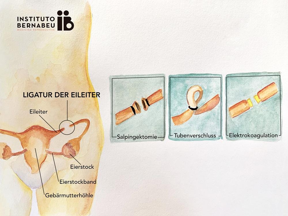 Ist es möglich, nach einer Eileiterdurchtrennung Mutter zu werden? - Instituto Bernabeu