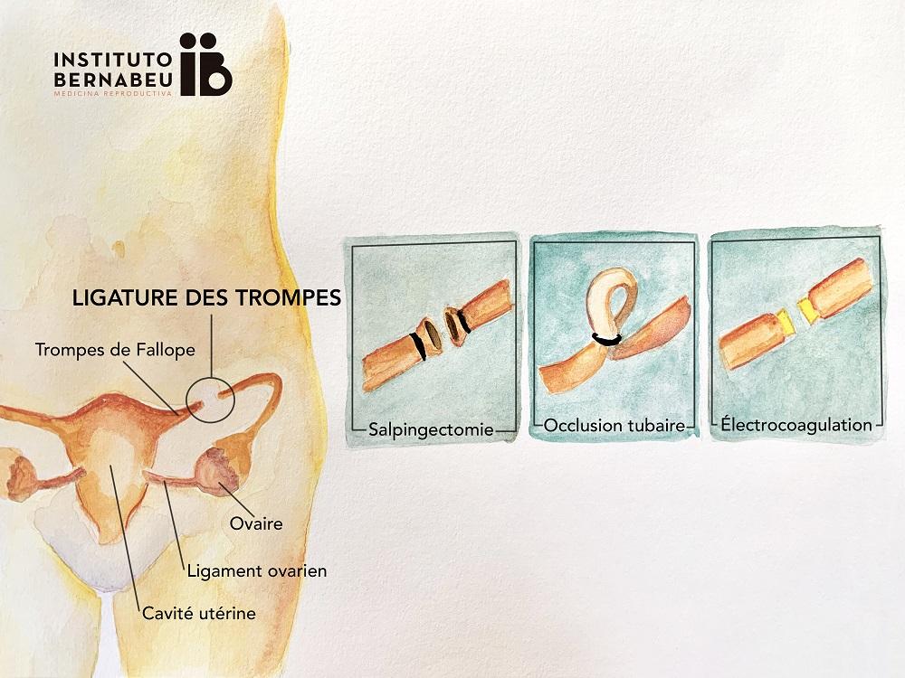 Est-il possible d'être mère après une ligature des trompes? - Instituto Bernabeu