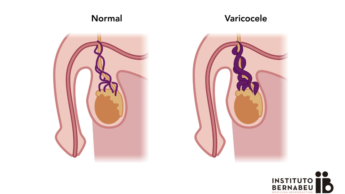 Varicocele e Infertilidad
