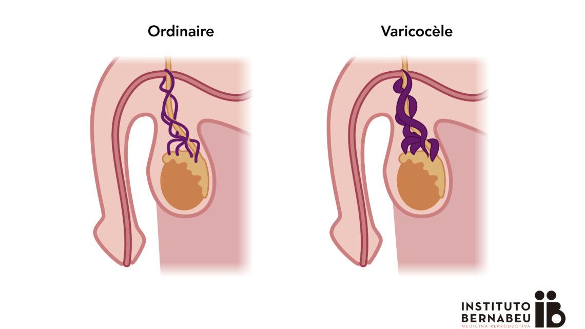 Varicocèle et infertilité