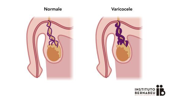 Varicocele e infertilità