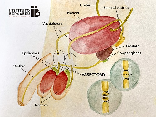 How to be a parent after vasectomy? - Instituto Bernabeu