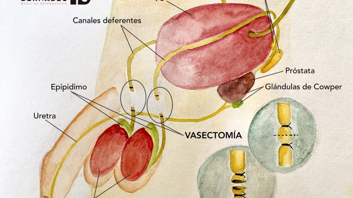 La vasectomía, el anticonceptivo masculino