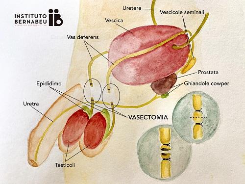 Come possiamo essere genitori dopo una vasectomia? - Instituto Bernabeu