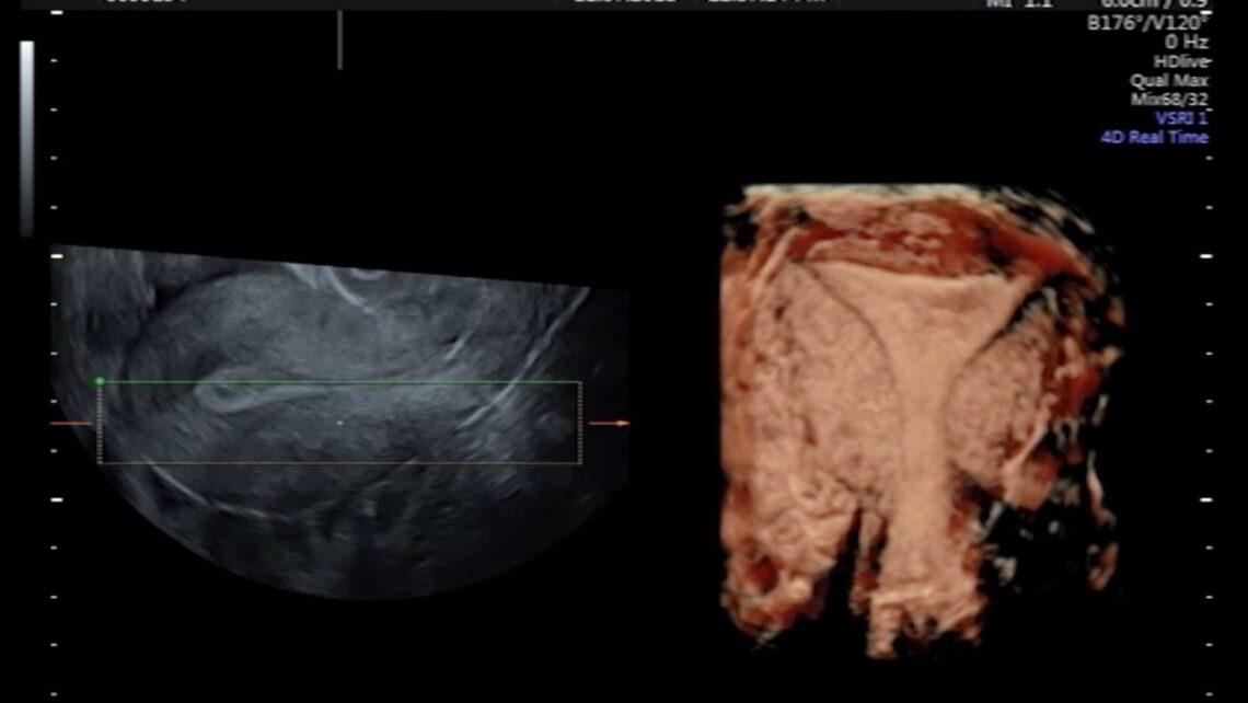 Le contrazioni uterine anomale causano errori di annidamento?