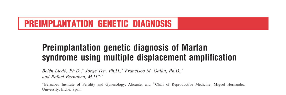 Preimplantation genetic diagnosis of Marfan syndrome using multiple displacement amplification