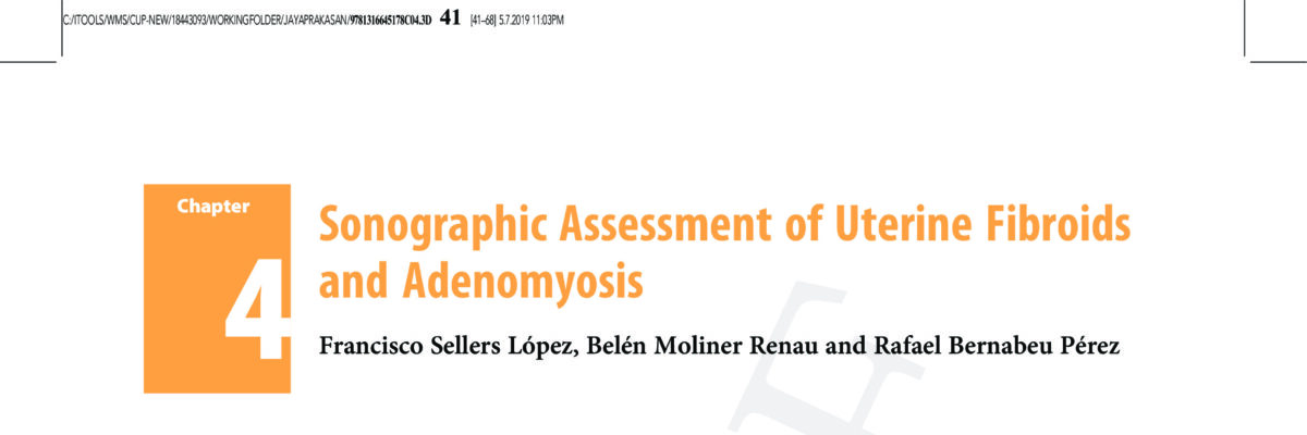 Sonographic Assessment of Uterine Fibroids and Adenomyosis