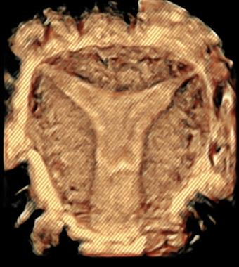 Instituto Bernabeu Research: New classification of Adenomyosis
