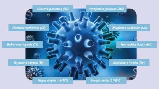 Drei sonografische Forschungsarbeiten, die für den Weltkongress über Ultraschall in der Gynäkologie präsentiert werden.