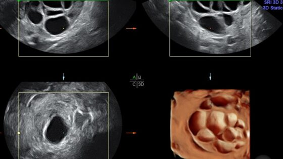 Wachstumshormon (GH)-Behandlung bei niedriger ovarieller Reserve
