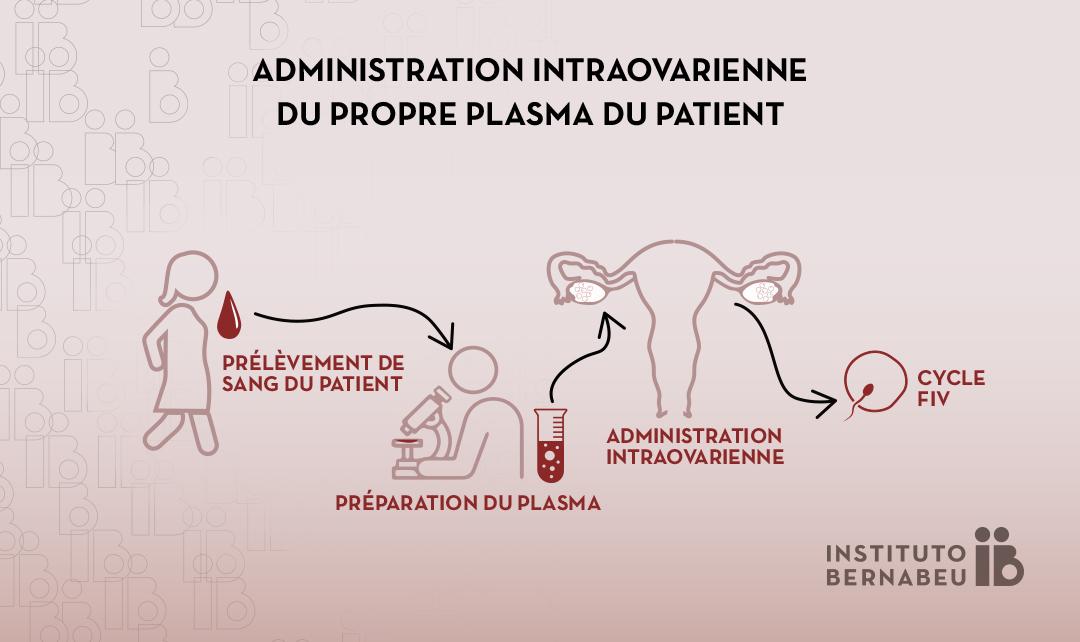 Utilisation du plasma riche en plaquettes (PRP) en cas de faible réserve ovarienne