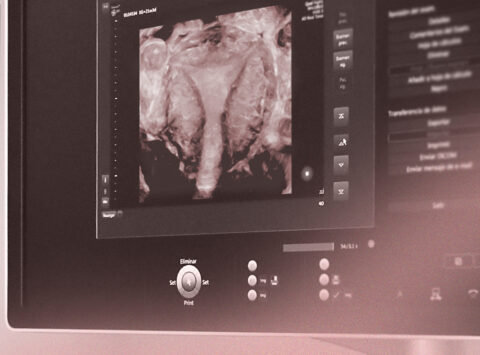 Dr Belen Moliner participates in a webinar on the latest advances in ultrasound in reproductive medicine