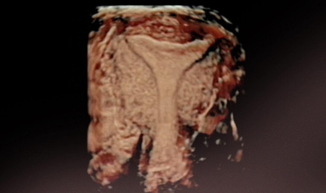 Arten von Tests zur Empfänglichkeit des Endometriums. Pros und Contras