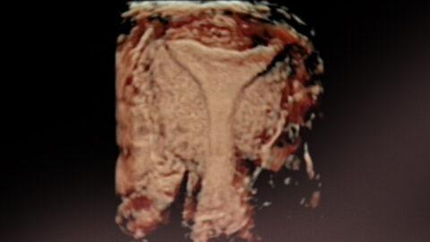 Tipos de test de receptividad endometrial. Pros y Contras