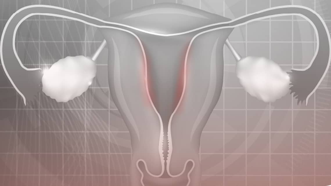 The Obstetrics & Gynaecology and Reproductive Biology international journal publishes an Instituto Bernabeu study of the vaginal microbiome diagnosis method for chronic endometritis