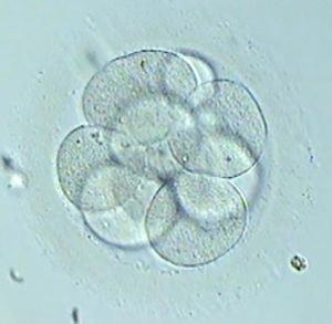 What became of my embryos? Haven't I got embryos to freeze?