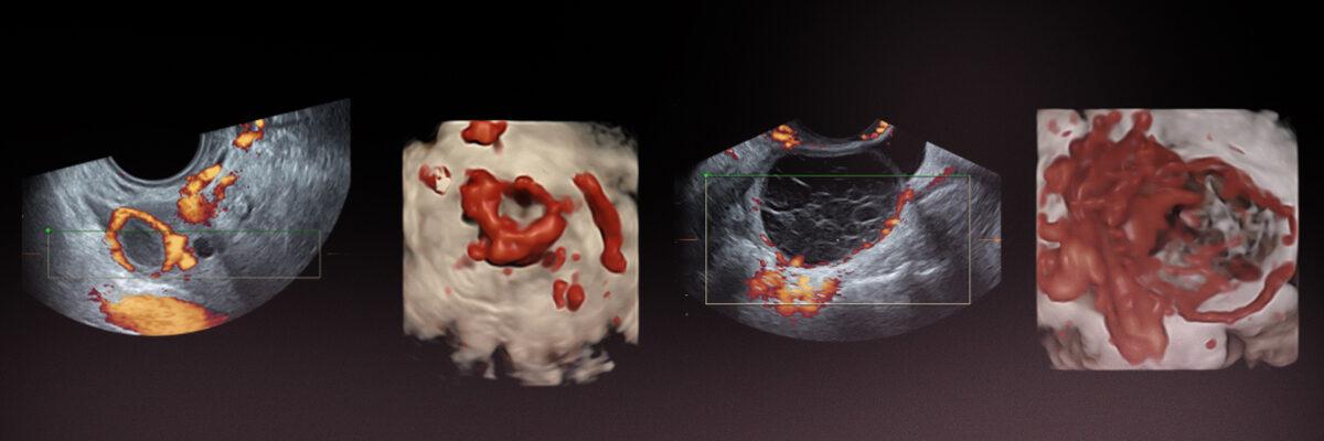وحدة الانتباذ البطاني الرحمي في معهد بيرنابيو