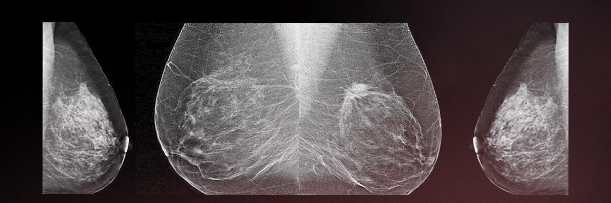 أمراض الثدي والتصوير الشعاعي للثدي