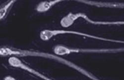 Sperm capacitation