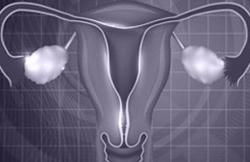 Inicio de progesterona