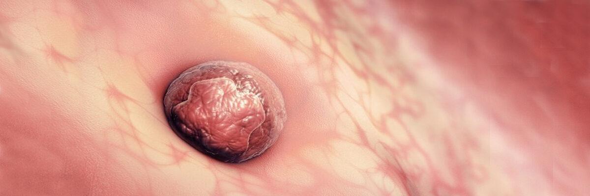 Unidad de inmunología reproductiva